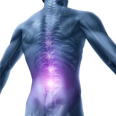 Die Nummer 1 für Rückenschmerzen EMS Training
